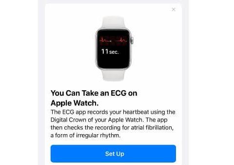 Apple Watch ECG Australia